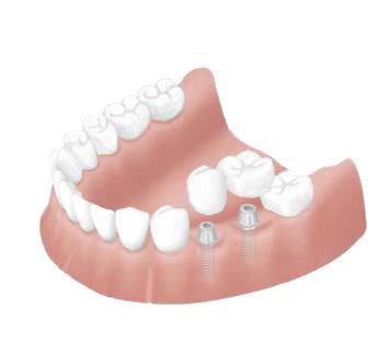ブルーリーフ歯科のインプラントのメリット