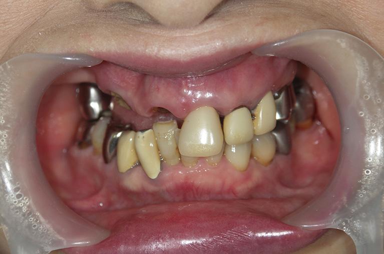 全顎インプラント術前