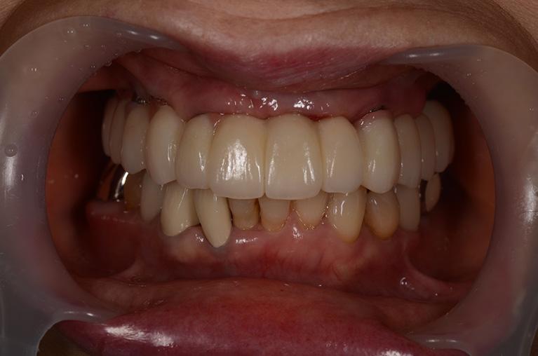 全顎インプラント術後