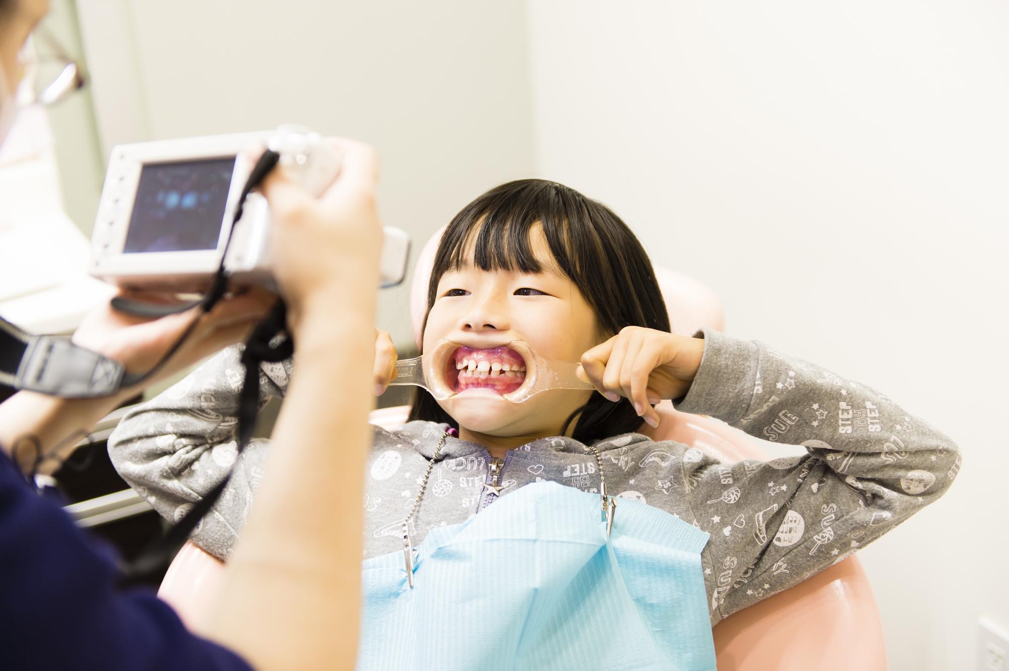 当院の小児矯正の特徴